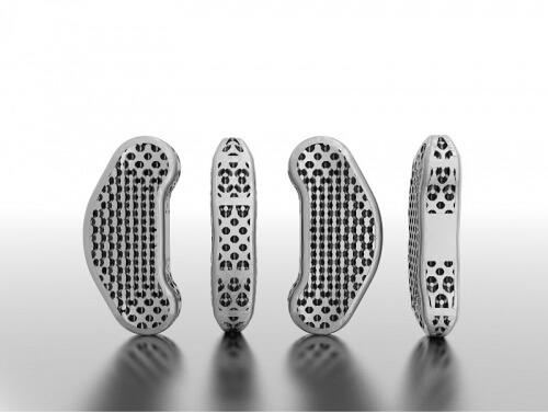 Leichtbau durch Lasercusing im Rapid Prototyping 3D-Druck Verfahren